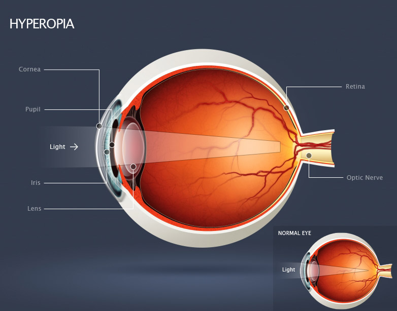 Vision complete common eye conditions ccuart Choice Image